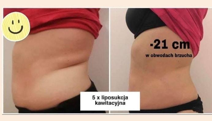 Efekt po Liposukcji kawitacyjnej